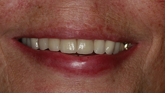 after denture stabilisation