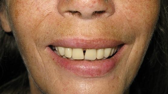 after implants for dentures