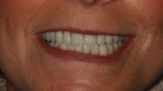 after Same Day Teeth