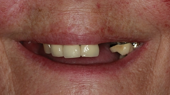 before denture stabilisation