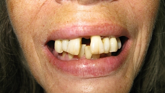 before implants for dentures