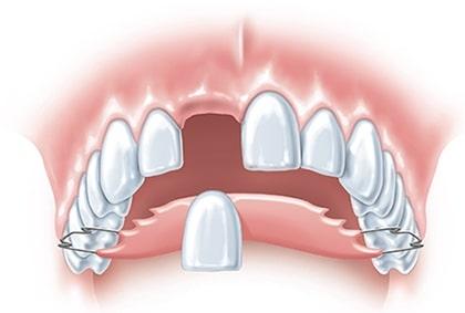 Example of a partial denture
