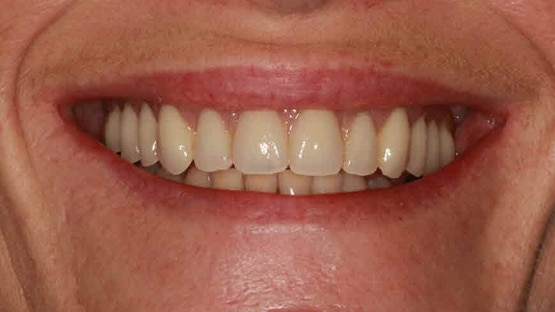Same Day Teeth After Implants Image