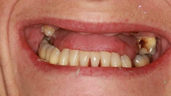 Same Day Teeth Before Implants Image